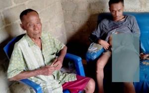Menderita Penyakit Kaki Gajah Sejak Kecil, Nirwanto Harapkan Bantuan Dermawan